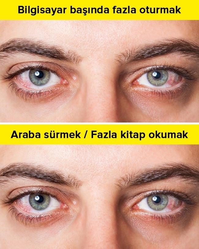 bilgisayar başında fazla oturmak gözleri bozabilir