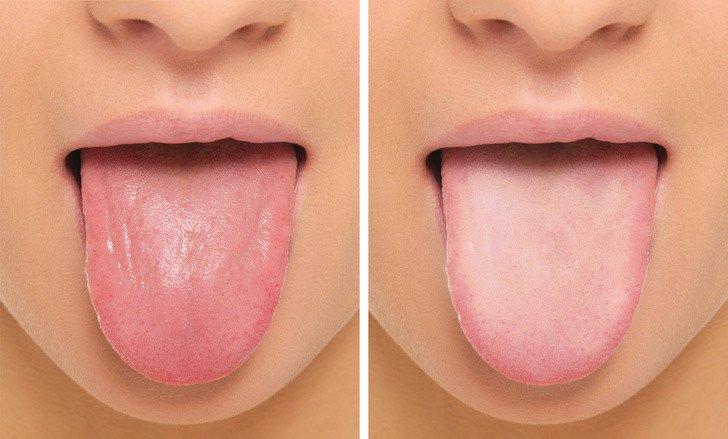 dil ve ağız