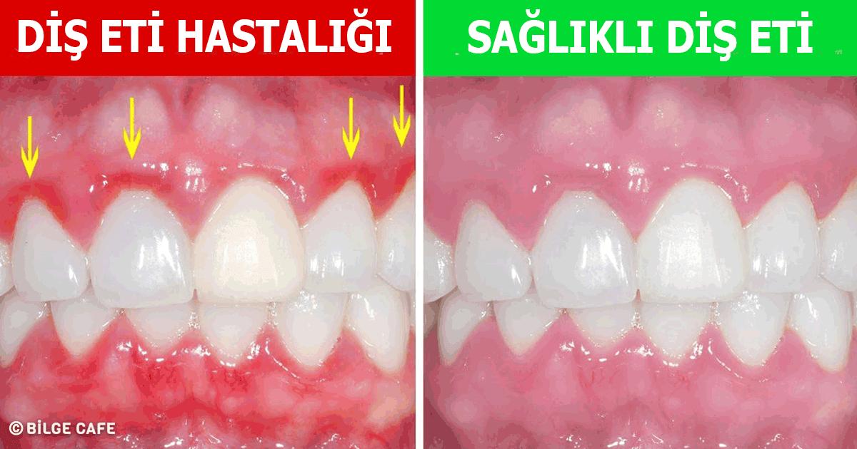 dişlerimize ve diş etlerimize zarar veren alışkanlıklar