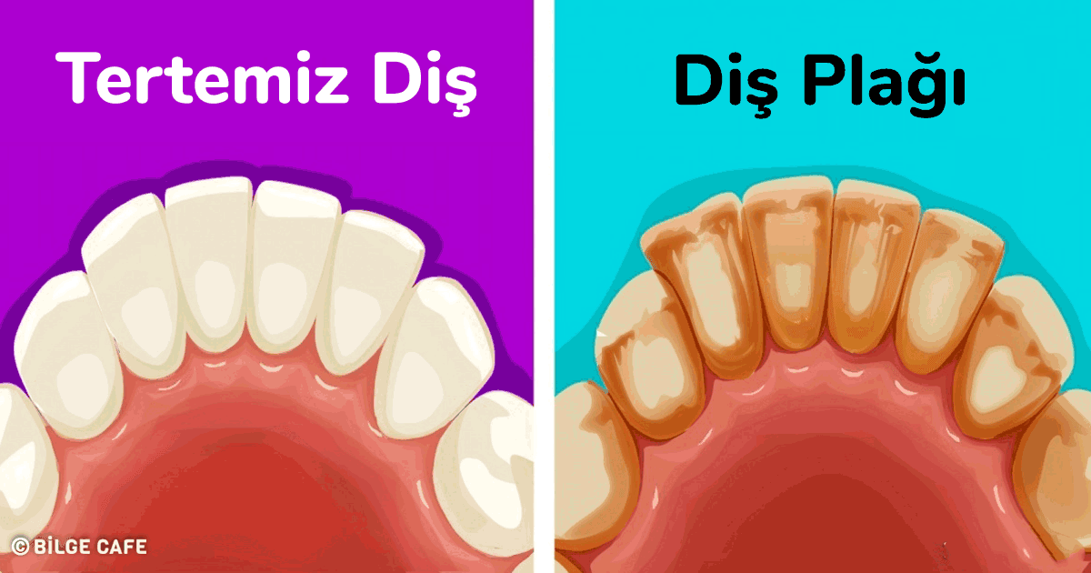 diş plağı temizleme