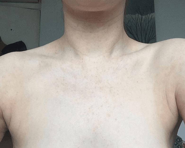 iyileşmiş göğüs