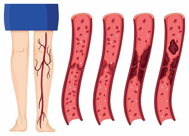 kan pıhtısı görseli