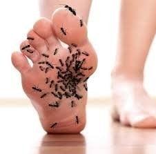 karıncalanma