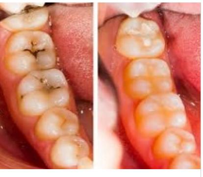 diş çatlakları