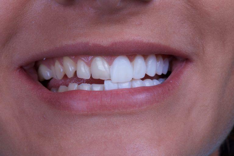 diş kaplamaları
