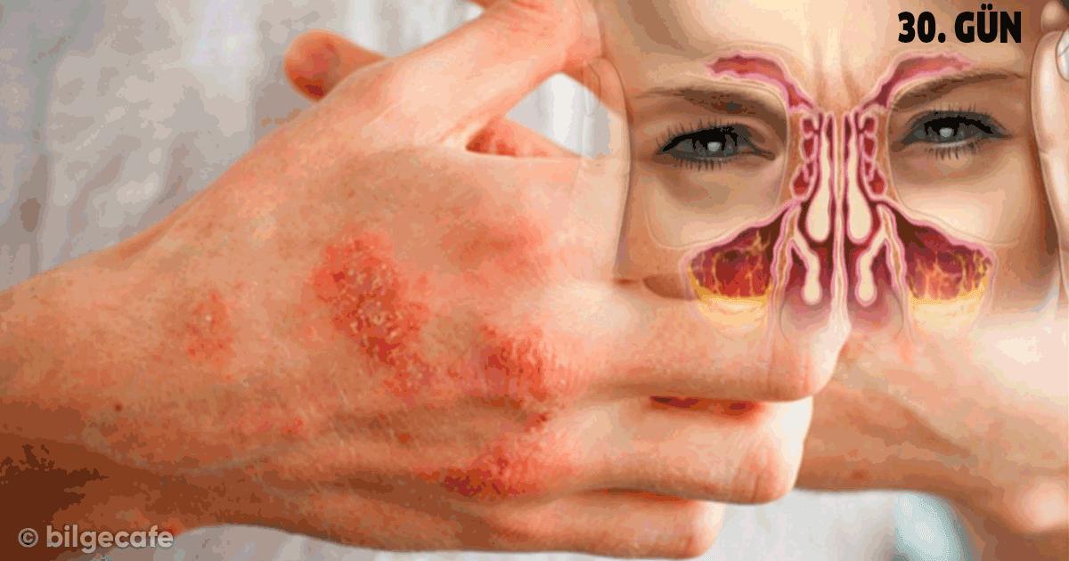 doğal antibiyotik