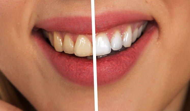 diş öncesi sonrası