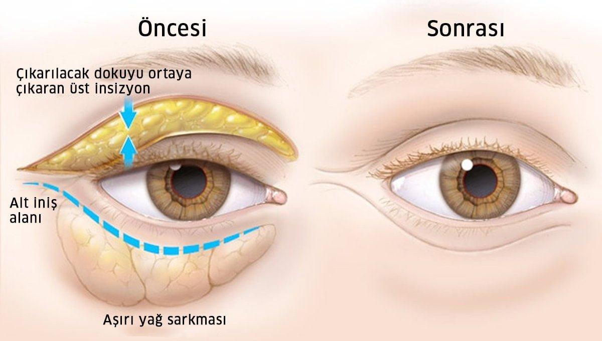 göz altı torbası anatomisi