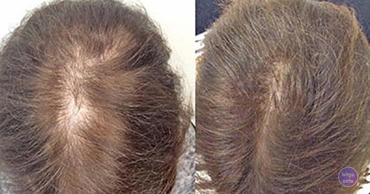 saç dökülmesine doğal tarifler