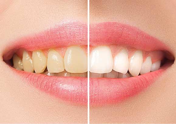 diş sararması nasıl geçer